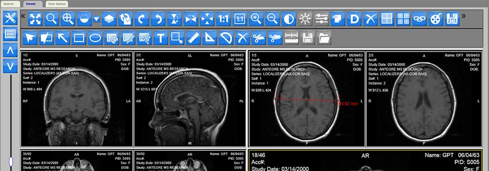 Technical-Features-of-DICOM-Viewer-on-TheSunrisePost